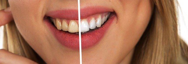 where-to-find-dentist-west-lakes